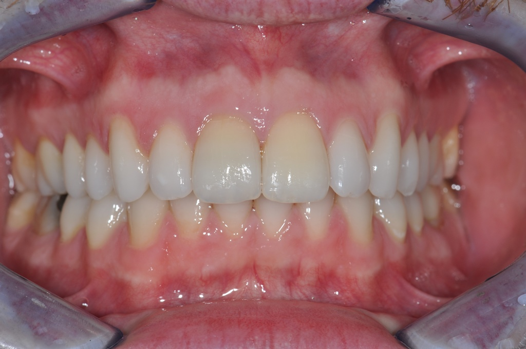 After Fast Braces Treatment