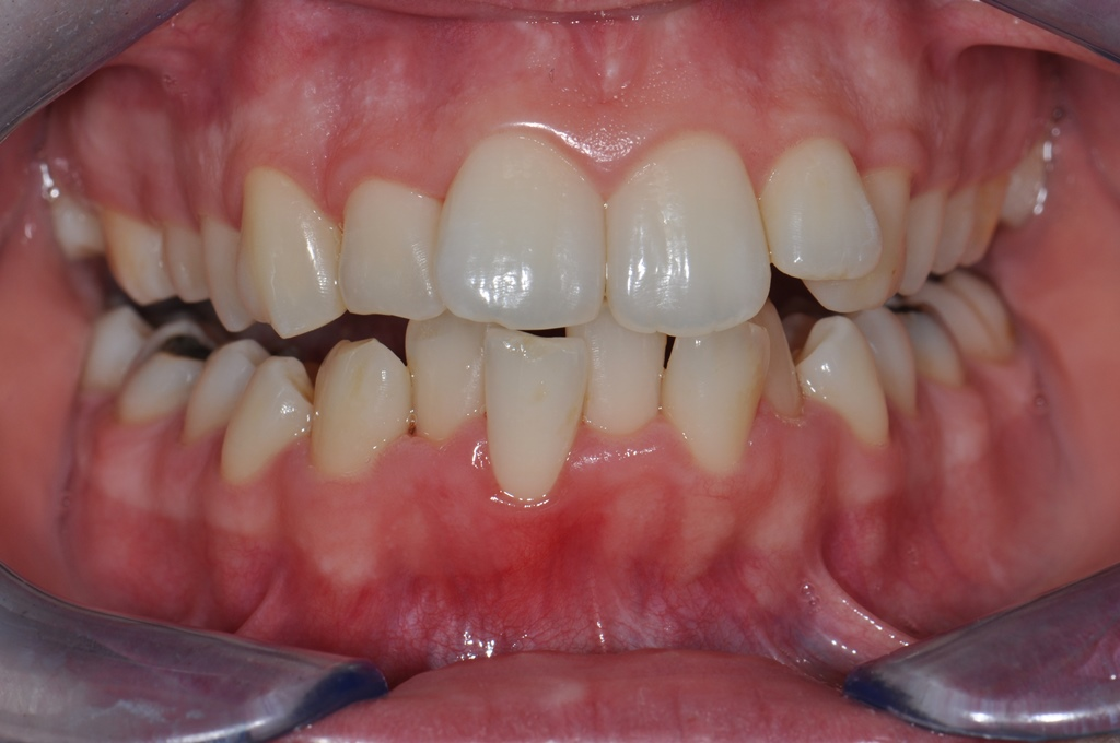 Before Straight Teeth Treatment