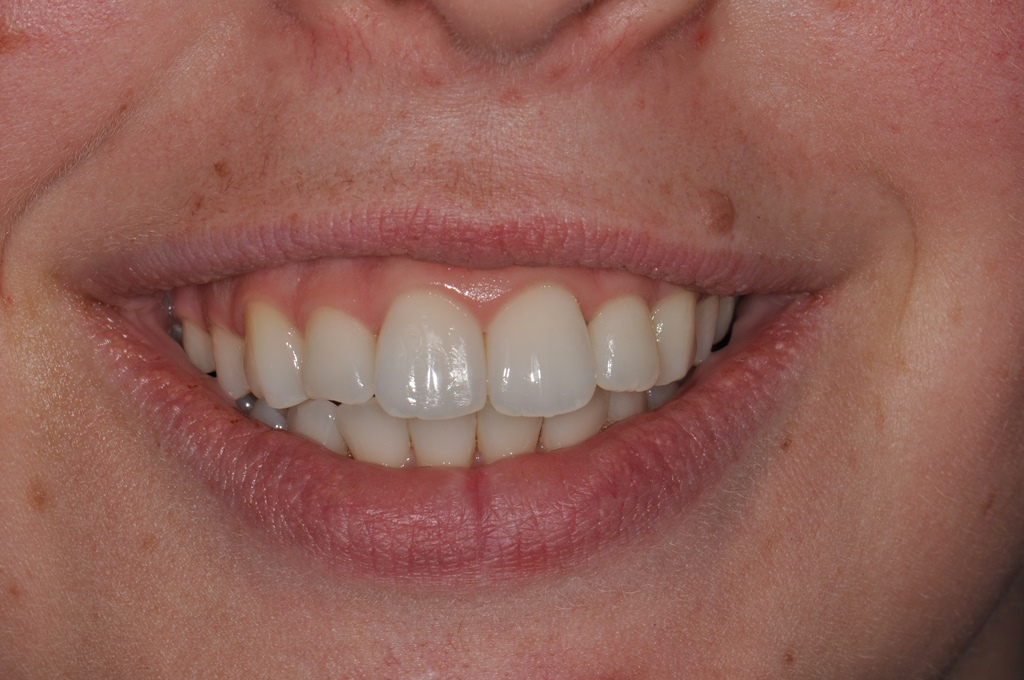 After Straight Teeth Treatment