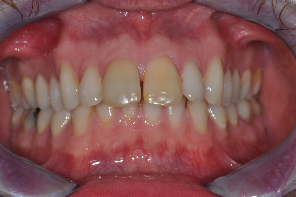 Before Fast Braces Treatment