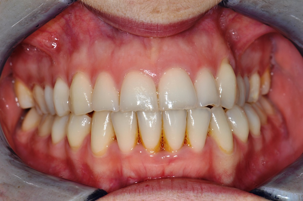 After Fast Braces
