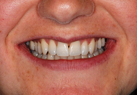 After Inman Aligner